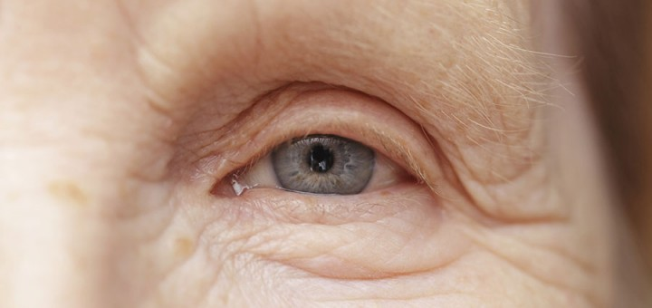 Eye Problems – What to Watch Out For