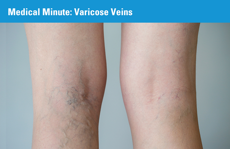 Medical Minute: Varicose Veins