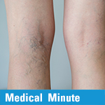 Medical Minute: Varicose Veins
