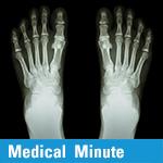 Medical Minute: Morton's Neuroma