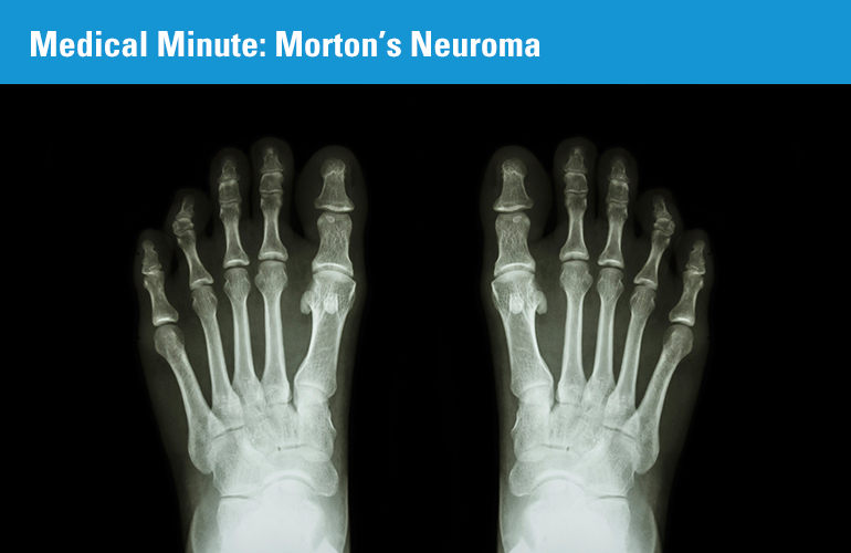 Medical Minute: Morton's Neuroma