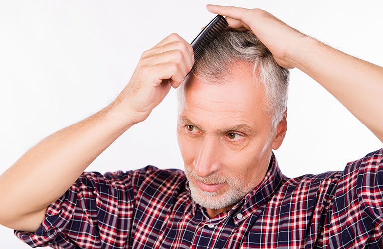 Hair-Loss Treatments Have Come a Long Way…is the Comb-Over a Thing of the Past?
