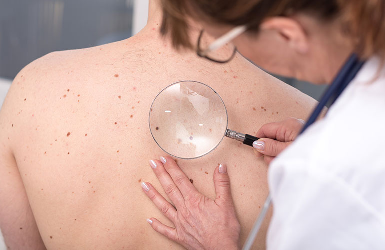 How to Avoid Skin Cancer