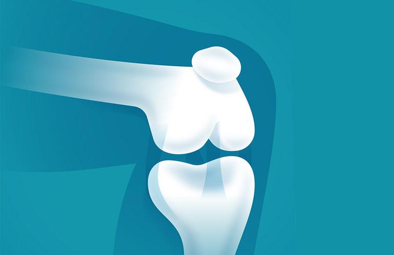 Dr. William Balcom on establishing one of Massachusetts' 1st total knee replacement programs