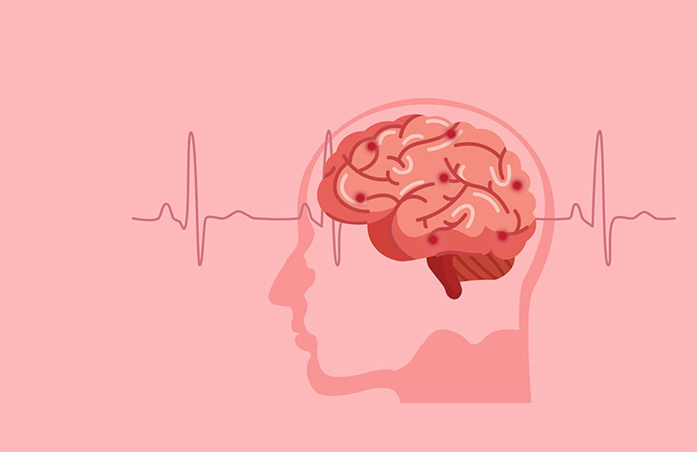 Learn How to Identify and Prevent Stroke